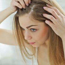 Swędząca skóra głowy – przyczyny i sposoby zapobiegania